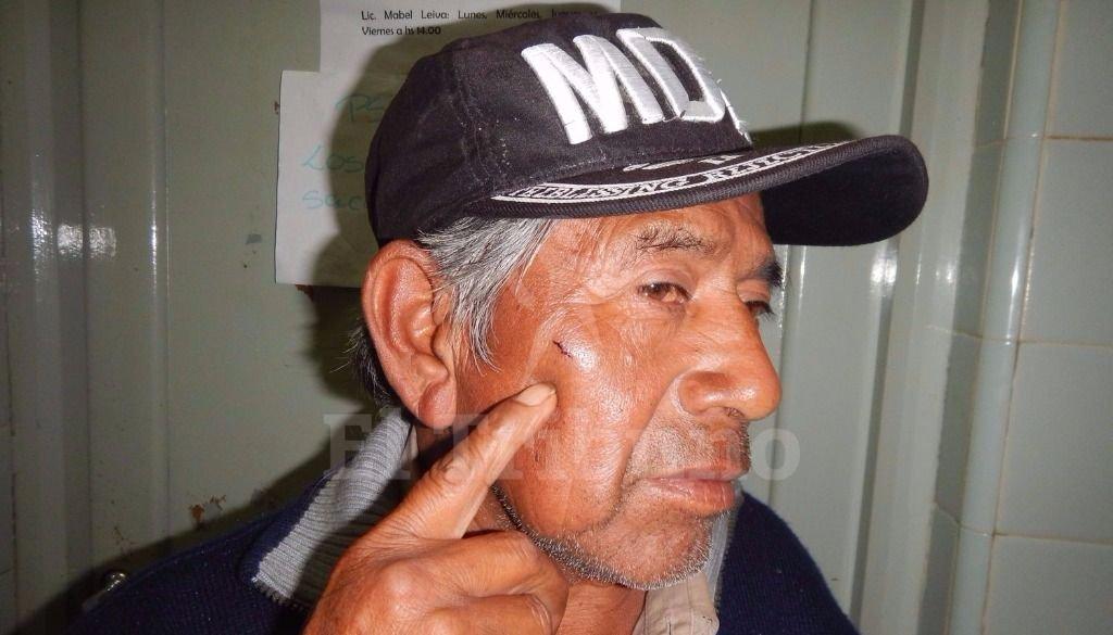 Brutal pelea entre aborígenes y policías en un barrio de Metán